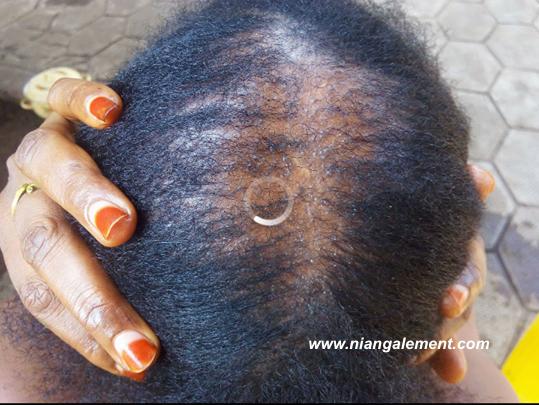 Alopécie androgénétique